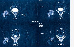 Abb. 03: beginnende Hüftkopfnekrose