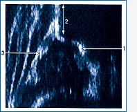 Abb. 05: Sonographie einer normalen Hüfte 1 = Pfannenboden, 2 = Beckenknochen, 3 = Pfannendach