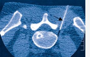 Abb. 01: Die exakte Platzierung der Nadel (Pfeil) auf die Nervenwurzel