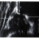 Abb. 1: Sonographie einer normalen Hüfte 1=Pfannenboden 2=Beckenknochen 3=Pfannendach