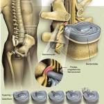 Rückenmark, Bandscheiben, Nervenwurzeln
