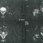 Abb. 2: beginnende Hüftkopfnekrose