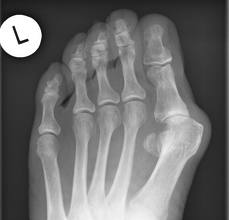 hallux-valgus-röntgenbild